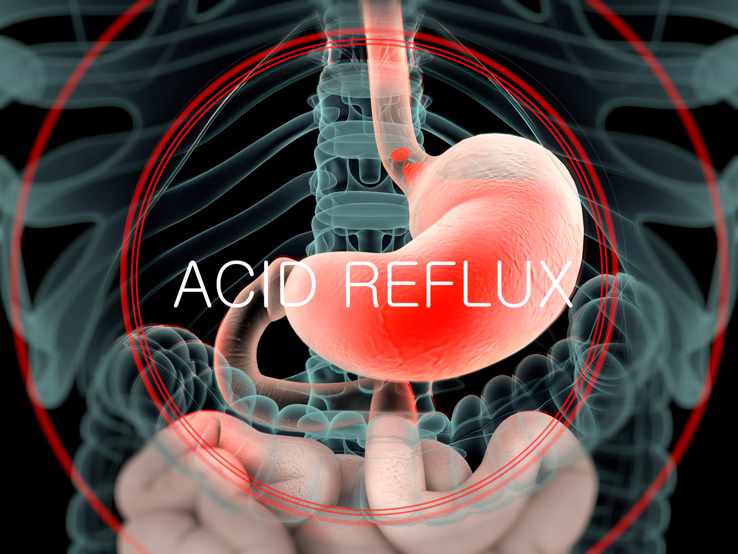 acid reflux diagram of stomache